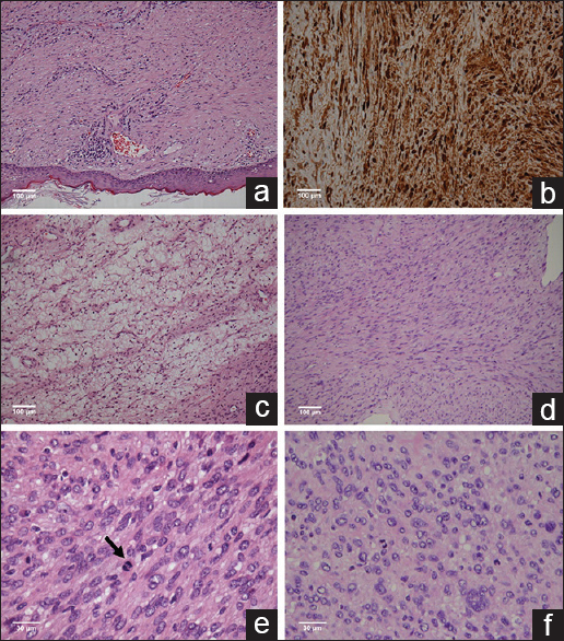 Figure 4: Malignant peripheral nerve sheath tumor composed of round to spindle-shaped cells with pleomorphic and hyperchromatic nuclei and abundant, faintly eosinophilic cytoplasm, ×100 (a); S-100 positive, ×100 (b); necrotic malignant peripheral nerve sheath tumor, ×100 (c); spindle pattern of malignant peripheral nerve sheath tumor, ×100 (d); mitotic malignant peripheral nerve sheath tumor, ×400 (e), epithelioid pattern of malignant peripheral nerve sheath tumor, ×400 (f)