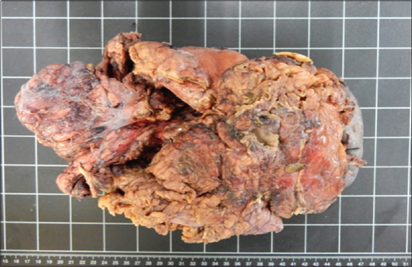Figure 3: A large mass including stomach, partial pancreas, spleen, and one segment of colon measured 22 cm × 15 cm × 13 cm