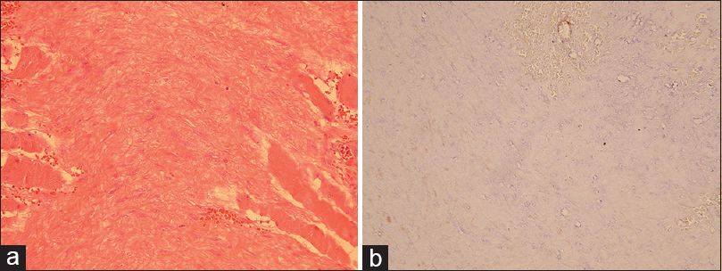 Figure 2: The histological examination of case 2. (a) The tumor is composed of slender spindle cells. It shows an infiltrative border with the adjacent skeletal muscles (hematoxylin and eosin, ×200). (b) The spindle cells are negative for smooth muscle actin (immunohistochemical, ×200). The diagnosis was confirmed of desmoid tumor
