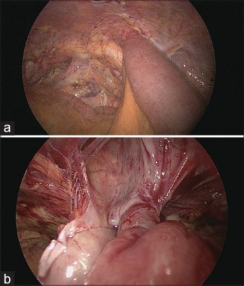 Figure 2: (a) Right side incarcerated hernia in Case #2. (b) Hernia defect after intestine reduction